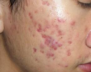 Các vấn đề về da sau mụn