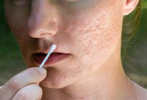 Top 3 công thức trị sẹo lõm hiệu quả