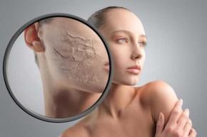 Tất tần tật về da khô