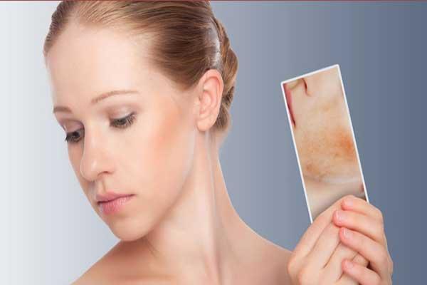 Phương pháp chăm sóc và bảo vệ da nhạy cảm