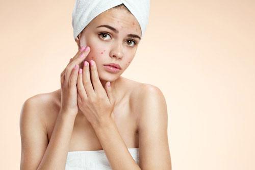 Phương pháp chăm sóc da tại nhà sau mụn