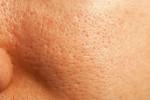 Xóa tan nỗi lo lỗ chân lông to với 5 phương pháp từ tự nhiên