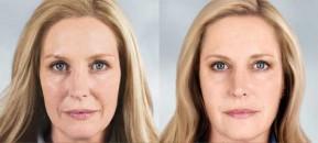 Phương pháp bổ sung, tái tạo collagen cho làn da tươi trẻ