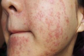 Cách xử lý khi da bị dị ứng mỹ phẩm