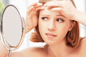 Tại sao da khô vẫn có nguy cơ bị nổi mụn?