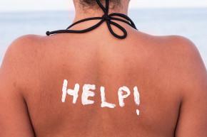 Tại sao da thường bị cháy nắng vào mùa hè và cách khắc phục?