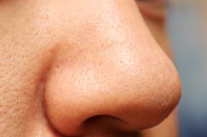 Phân biệt mụn đầu đen và sợi bã nhờn để áp dụng cách điều trị phù hợp, hiệu quả