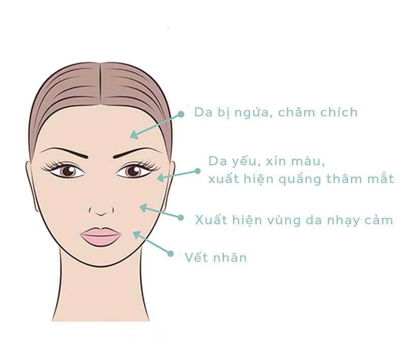 """Những dấu hiệu """"tố"""" da bạn đang thiếu độ ẩm"""