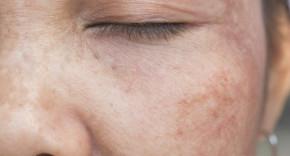 Lý do nào khiến 70% phụ nữ Việt Nam bị nám da?