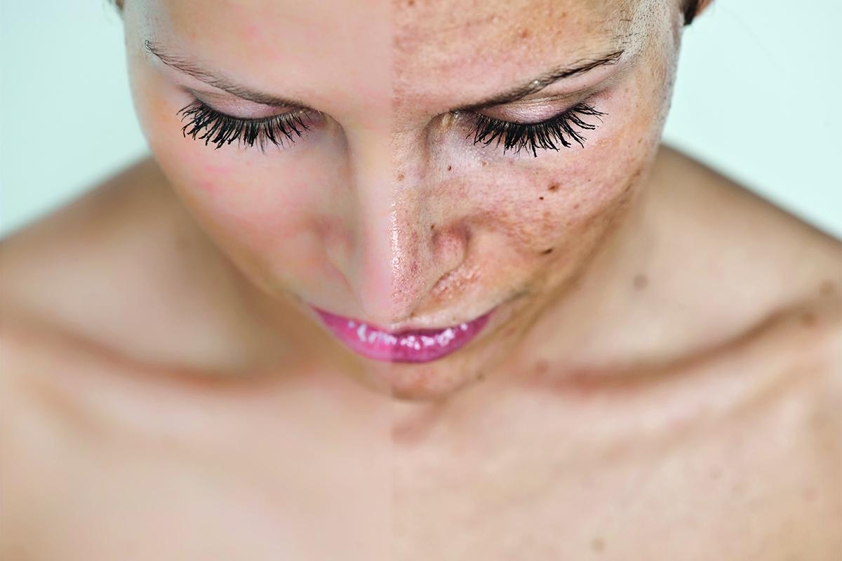 80% chị em mắc phải những sai lầm này khi điều trị nám da