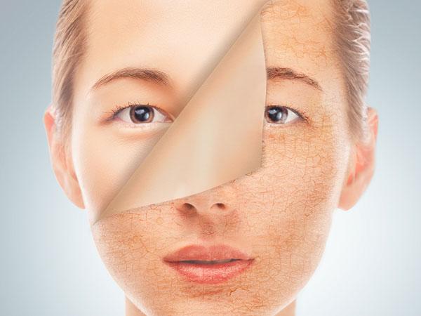 3 dấu hiệu cho thấy da bị hư tổn do dị ứng mỹ phẩm