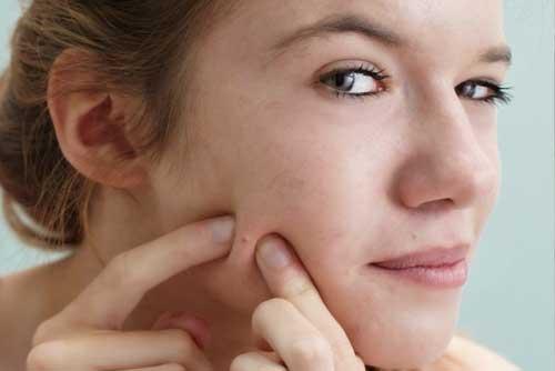 Những điều NÊN  và KHÔNG NÊN trong chăm sóc da mụn