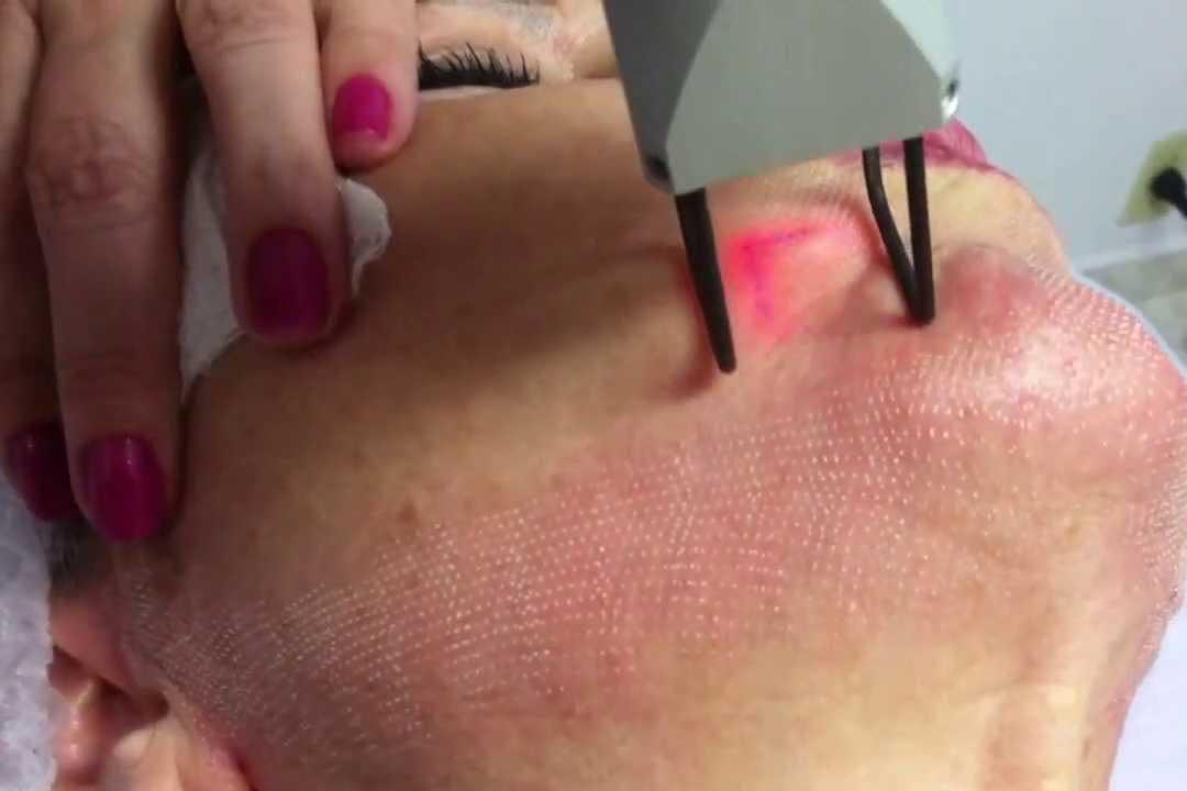 Những phát triển của y khoa trong chăm sóc và điều trị bệnh da