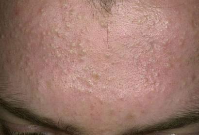 Tất tần tật về mụn ẩn dưới da