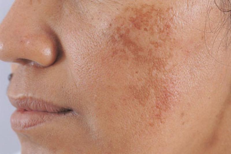 Rối loạn nội tiết tố là một trong những nguyên nhân chính gây nám da