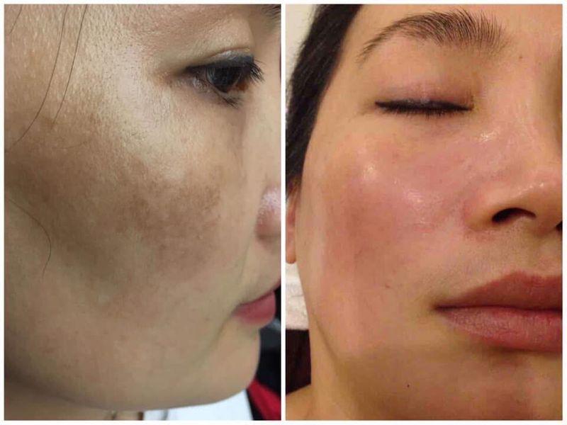 collagen-chong-lao-hoa-hinh4